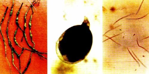 Hình ảnh rễ tiêu bị vàng lá chết chậm do tuyến trùng Meloidogyne incognita gây nên