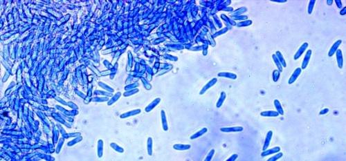 Nấm Colletotrichum gloeosporioides gây ra bệnh thán thư